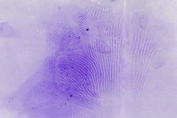 b81000_gentian_violet_on_transparent_tape_lrg